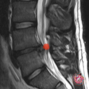 """""""The above picture shows a disc herniation. One of the many issues we treat here in Cardiff City"""""""