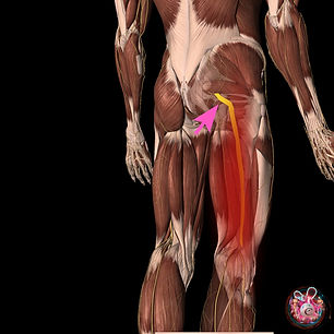 """""""The picture above illustrates an irritated sciatic nerve"""""""