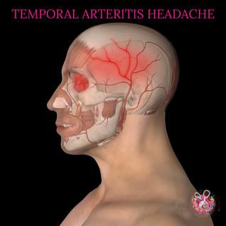 Temporal arteritis.jpg