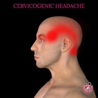 Cervicogenic headache Cardiff.jpg