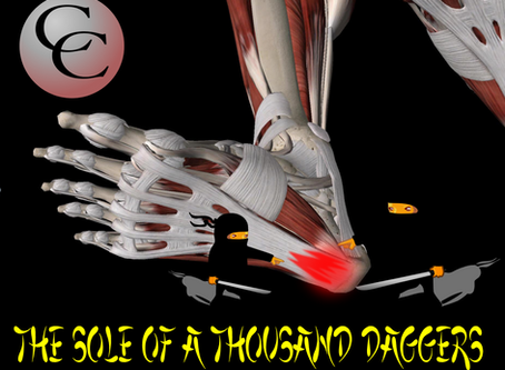 Plantar Fasciitis: The Sole Of A Thousand Daggers