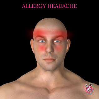 Allergy headache cardiff treamtent