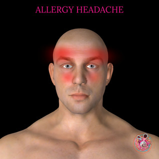 Allergy headache.jpg