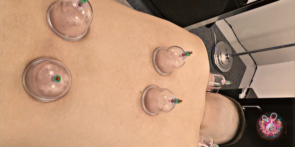Cupping treatment in Cardiff