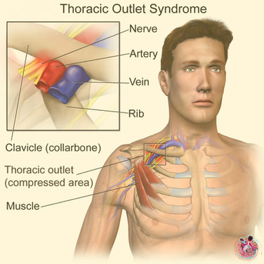 Thoracic outlet syndrome Cardiff.jpg