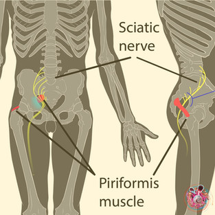 """""""The above picture shows Piriformis syndrome. One of the many causes of sciatica"""""""