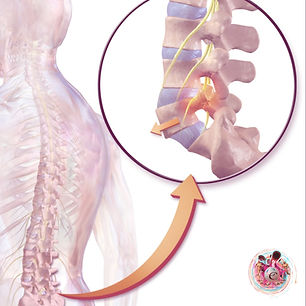 """""""The picture above illustrates a spondylolisthesis. A slippage of a spinal vertebra that can compress the spinal cord and cause sciatic pain"""""""