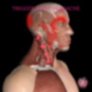 Trigger point headache Cardiff.jpg