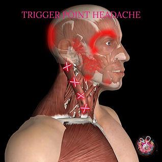 Trigger point headache Cardiff.jpg