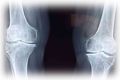 X ray of knees