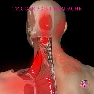 Trigger point headache.jpg