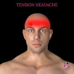 Tension headache treatment in Cardiff.jp