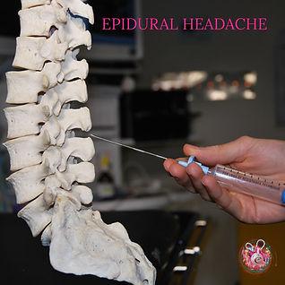 Epidural headache.jpg
