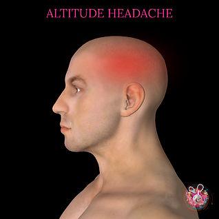 Altitude headache