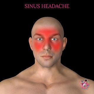 Sinus headache.jpg
