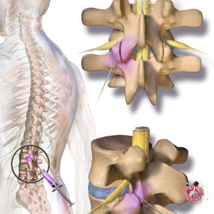 """""""The above picture shows posterior facet syndrome which can lead to sciatic pain"""""""