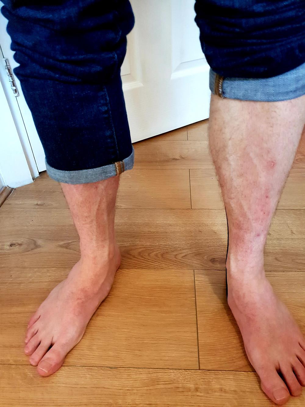 Man showing his feet