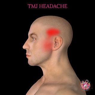 TMJ headache Cardiff.jpg