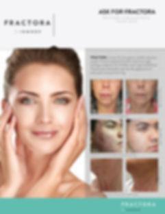 NEW-Brand_Fractora_One-Page-Ad_Blank.jpg