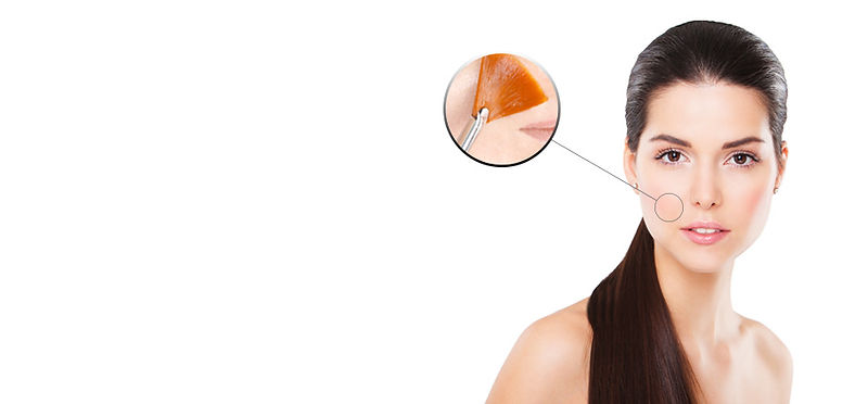 peeling, pigmentvlekken, verslapte huid, rimpels, droge huid, rosacea, zonbeschadigde huid, acne