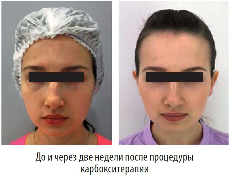результат лечения темных кругов под глазами аппаратом для карбокситерапии