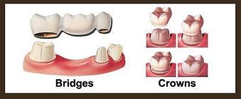 Spartanburg SC Dentist, Boiling Springs SC Dentist, Mark Beard Dentist, North Grove Dental Spartanburg SC