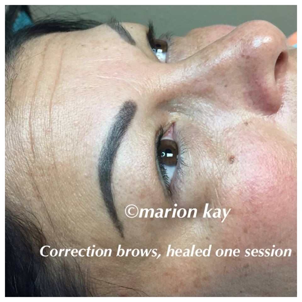 Healed Brows