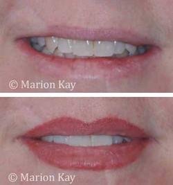 Before, Healed Lips