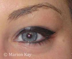 Post-Procedure Eyeliner