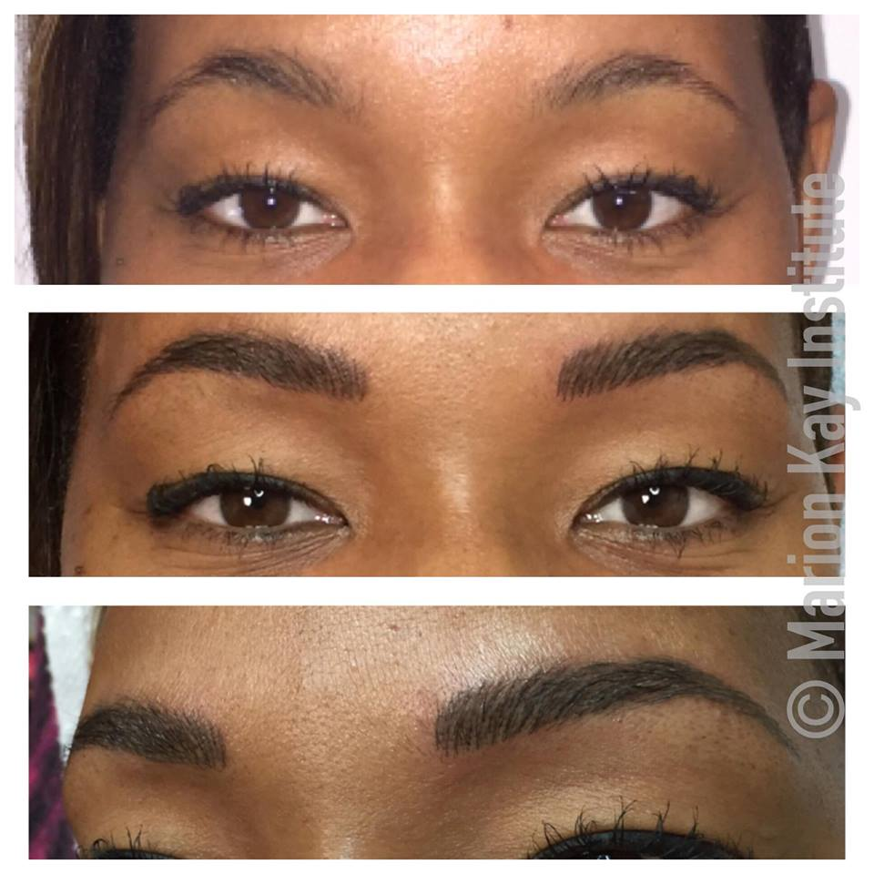 Before, Post-Procedure Brow Followup