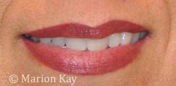 Healed Lip Blend