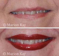 Before, Post-Procedure Lips