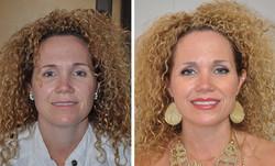 Before, Healed Eyeliner and Lips