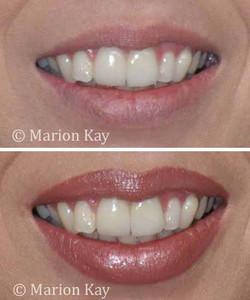 Before, Healed Lips w/ Gloss