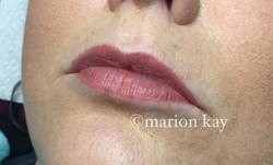 Healed Lips
