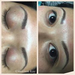 Post-Procedure Hairstrokes, Healed