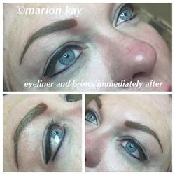 Post-Procedure Brows and Eyeliner