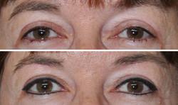 Before, Healed Eyeliner
