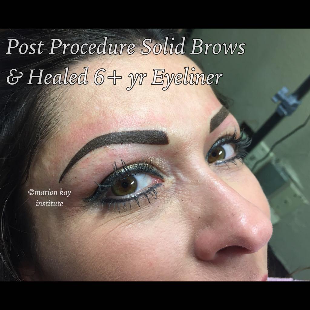 Post-Procedure Brows, Healed Eyes