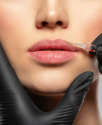 caucasian-woman-getting-botox-cosmetic-i