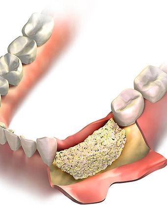dental-bone-graft.jpg