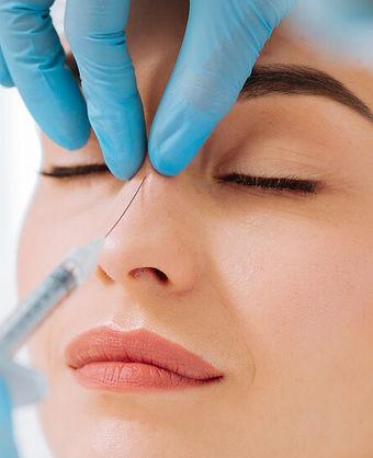 injecting-filler-nose-bump-non-surgical-