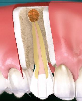 Apicoectomy-root-end-infection.jpg