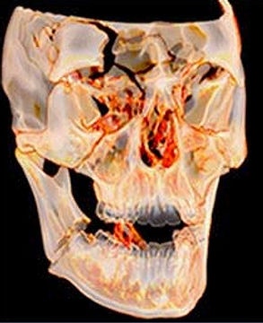 traumatologia_maxillo_facciale_fracasso_