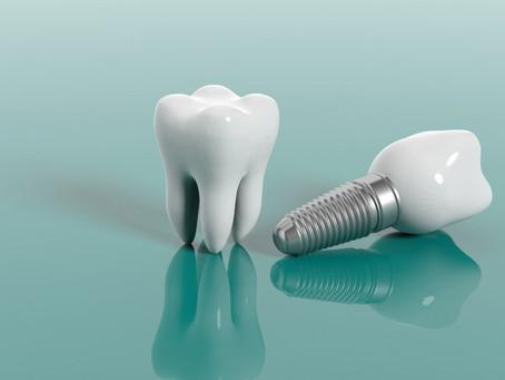 Lo que no sabías sobre los Implantes Dentales