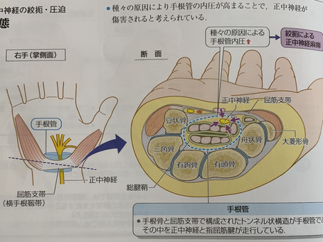 熊谷 MAKE A BODY 手根管症候群