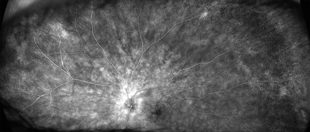 Maculopatia con degenerazione dell'epitelio pigmentato retinico