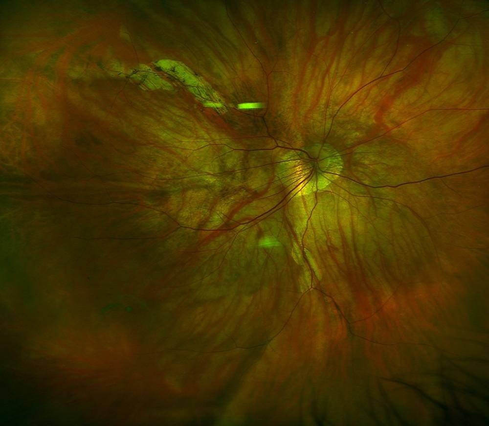 Stafiloma postico e Maculopatia miopica