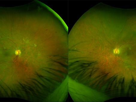 L'esame del fondo oculare