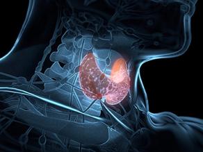 Medical: Thyroid.